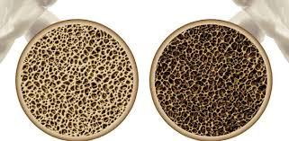 Osteoporose (Knochenschwund verlauf