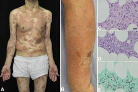 Image result for cryptococcosis skin