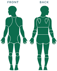 Injury Location Chart Body Map Our Body Map Peak Sports And Spine Physical Therapy