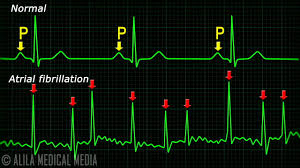 Ecg Chart Examples Atrial Fibrillation Anatomy Ecg And Stroke Animation