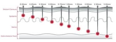 What Size Derma Roller Should I Use Derma Rollers