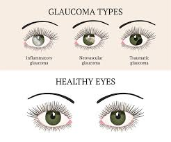 Eyes On Drugs Chart Natural Ways To Bring Down Eye Pressure Rebuild Your Vision