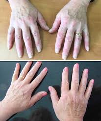 Psoriasis Treatment Update Woman Discovers Miracle Cure In This