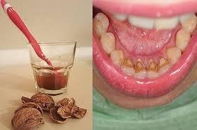 Картинки по запросу Избавляемся от зубного камня!!!Супер средство ореховый отвар .