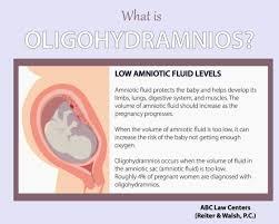 Oligohydramnios Low Amniotic Fluid Birth Injury Cases