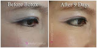 botox for wrinkles around eyes
