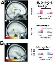 a retrosplenial cortex 14 52 12 z