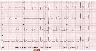 Ecg Chart Examples Math Of Ecgs Fourier Series