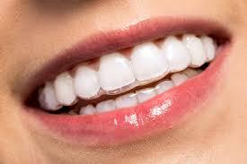 Ortodonzia Invisibile – Clinica Identi
