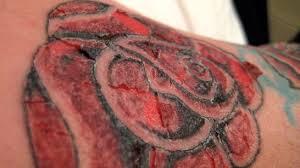 Tetování Infekce Příznaky A Léčba Váš Lékař 2019