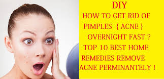 how to get rid of pimples acne overnight fast home remes how to