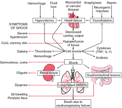Hypovolemic shock   definition of hypovolemic shock by Medical     Pathogenesis of shock   ARDS   adult respiratory distress syndrome  GI   gastrointestinal  IL   interleukin  TNF   tumor necrosis factor