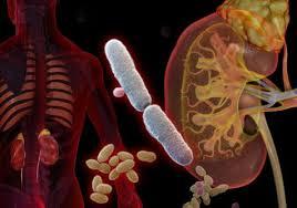 Инфекции мочевыводящих путей у детей причины виды диагностика  Пиелонефрит это инфекционно воспалительное заболевание почек