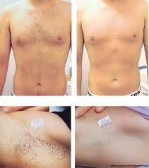 best hair removal cream for men check more at healthyandsmooth