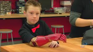 Comment des prothèses inspirées des super-héros permettent de ...