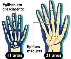 Resultado de imagem para epifise ossea