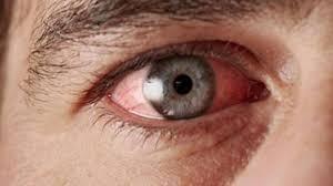 Adenovirüs nedir, belirtileri neler? - Sağlık Haberleri