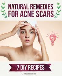 natural home remes for acne scars