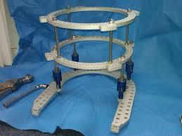 external fixator circular external fixation frame set activize