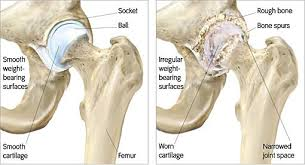 Knee, osteoarthritis : causes, symptoms, treatments