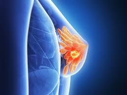 Znalezione obrazy dla zapytania Rak piersi