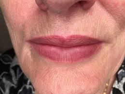 перманентный макияж сосудистых губ коррекция синих губ
