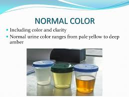 Urine Color And Clarity Chart Lab 304 Lecture 9 Learning Objectives To Recognize