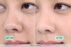 home remes to get rid of clogged pores