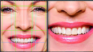 Aesthetic Smiles By Design Aesthetic Digital Smile Design Software Aided Aesthetic