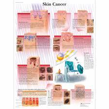 anatomical charts and posters anatomy charts pathology charts  skin cancer chart