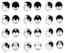 What Causes Male Pattern Baldness
