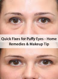 6 quick fi for puffy eyes home remes tips how frustrating is it to wake up with puffy eyes every morning when you have to go ahe