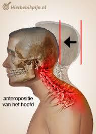 Pijn nek en hoofd