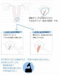 繋留 流産 手術
