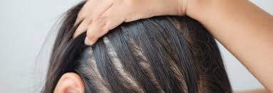 The high heat strips the scalp of moisture and can restrict hair growth because of lack of healthy oils. How To Handle Treat Female Hair Loss Dermatology Mohs