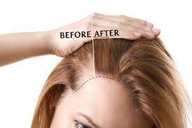 ニューモの口コミ】予防と育毛で毛髪にはどう効くのか?