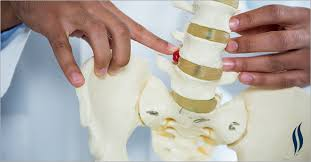 Whats A Facet Facet Joint Hypertrophy Symptoms And Treatments