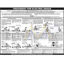 67 Disclosed Electric Shock Treatment Chart Pdf