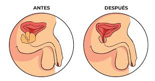Resultado de imagen para cirugía de prostata