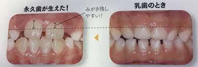 乳歯 生え 変わり