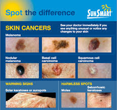 Mole Chart For Skin Cancer When To Worry About A Mole Skin Analytics