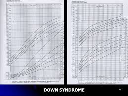 Down Syndrome Growth Chart Download Growth And Growth Disorders Ppt Video Online Download