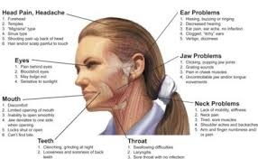 Headache Chart Top Of Head 5 Signs Your Headache May Be Caused By Tmj News