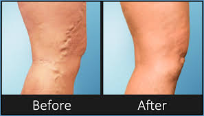 Image result for varicose veins before and after