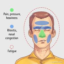you ll feel a deep pressure and pain in your forehead in the area of the eyebrows and under the eyes the pain usually gets stronger when you move your head