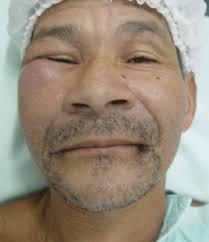 Assessing facial edema in sinusitis