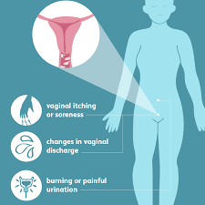 Yeast Infection: Signs, Symptoms, and Complications