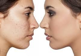 Hasil gambar untuk wajah bruntusan