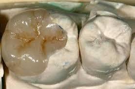 dental onlay porcelain crown dental onlay conservative allen tx family