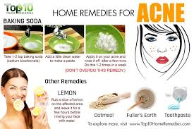 Most effective home remedy for acne